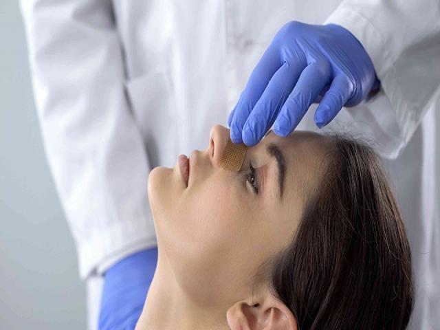 مراقبت های مهم بعد از جراحی بینی