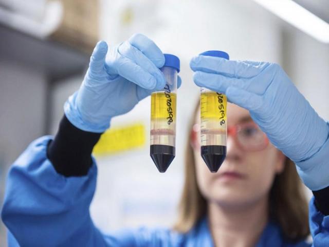 جزئیات لخته شدن خون در واکسنهای کووید-19