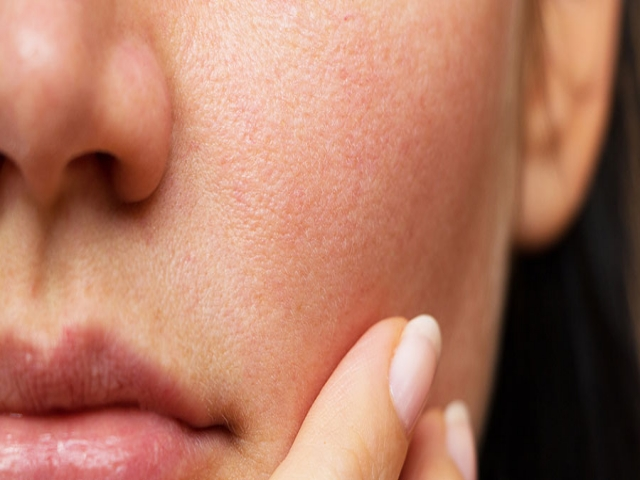 روشهای محافظت از پوست و عادات مهم سلامتی پوست را بشناسید