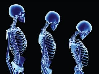 معرفی بیماری پوکی استخوان