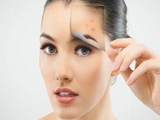 درمان جوش صورت فوری و طبیعی