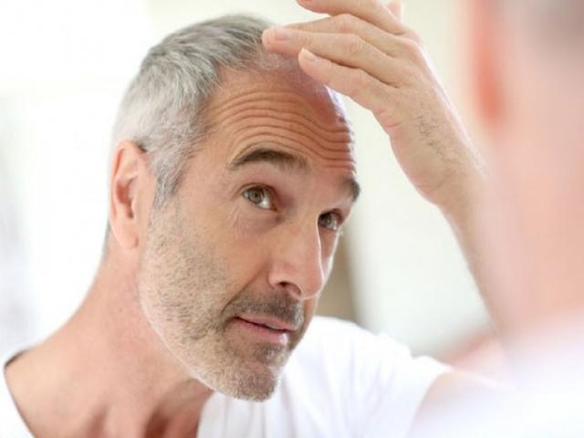 درمان ریزش موی مردان - بخش اول