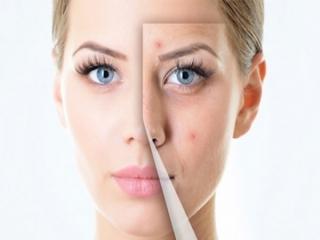 درمان جای جوش صورت