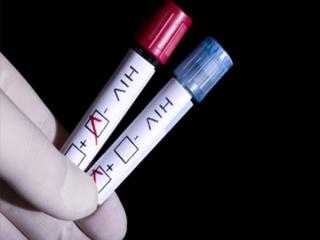 بهترین زمان برای آزمایش HIV بعد از رابطه جنسی