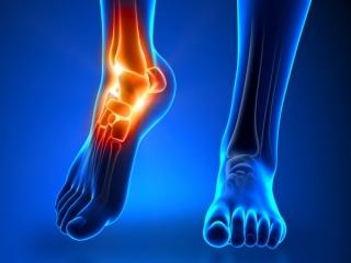علت و درمان درد کف پا چیست؟