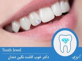 دکتر خوب کاشت نگین دندان