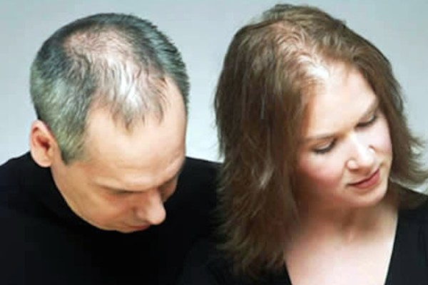 Some of the reasons for hair loss(2)