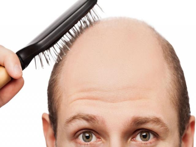 غذاهایی که باعث ریزش مو می شوند