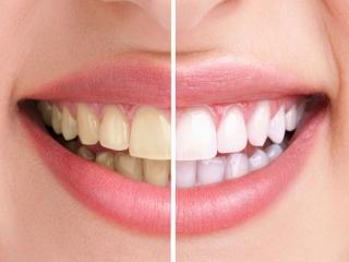 رفع زردی دندان در 5 دقیقه