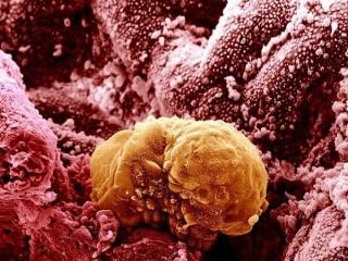 تاثیر عجیب هوش مصنوعی بر درمان سرطان