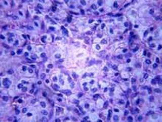 شایع ترین سرطان های دستگاه گوارش در مردان و زنان