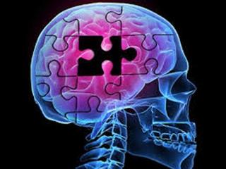 کشف علت مرموز آلزایمر