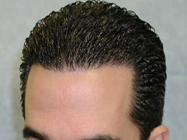 بهترین روش کاشت مو کدام است؟