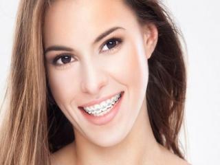 چرا باید دندان های نامرتب را ارتودنسی کنیم؟