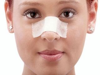 جراحی بینی انجام بدیم یا نه؟