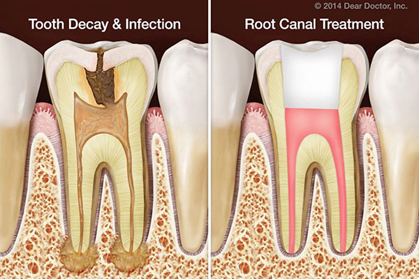 pain-after-root-canal1