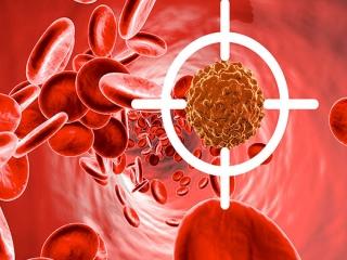 نشانه ها و علائم خاموش سرطان خون