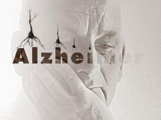 آلزایمر و حرکات ورزشی