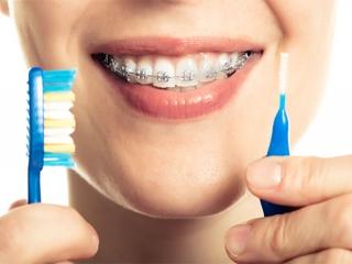 بهداشت و مراقبت از دهان و دندان در زمان ارتودنسی