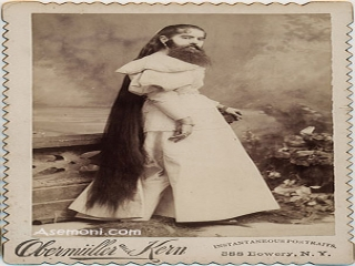 زنی با صورتی پر از مو