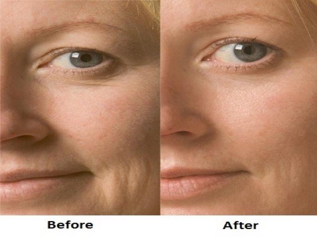 زیبایی و جوانسازی پوست صورت با طب سوزنی