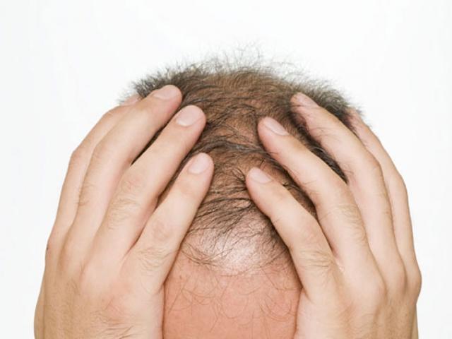 همه چیز در مورد ریزش مو سکه ای