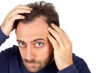 کاشت مو با PRP و کاشت مو با لیزر چه تفاوتی دارند؟