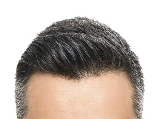 خطرات و عوارض های جانبی کاشت موی طبیعی