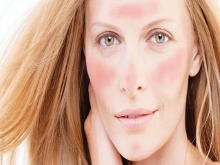 درمان پوست دارای آکنه روزاسه