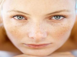 انواع لک های پوستی و درمان