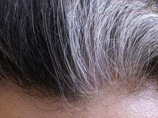 علت و درمان سفید شدن مو در کودکی و جوانی