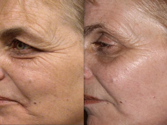 روش های نوین در جوانسازی پوست