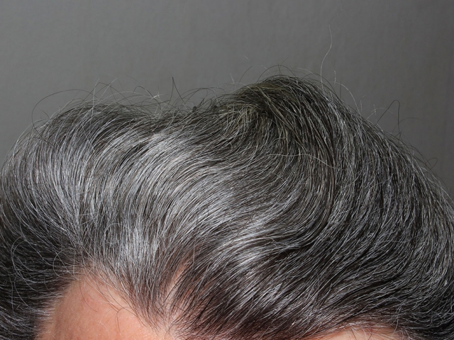 رفع دائم سفیدی مو و سیاه کننده دائم مو