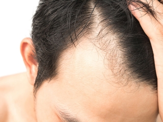 کاشت مو بدون جراحی و تراشیدن موی سر