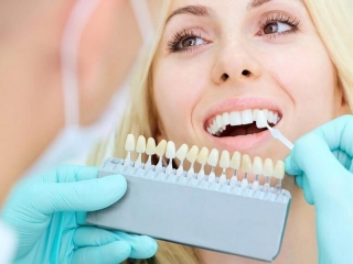 خدمات لمینت دندان در کرج