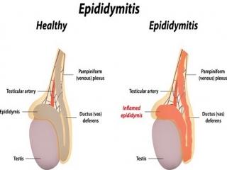 Epididymitis اپیدیدیمیت چیست (علل، علائم، پیشگیری و درمان)