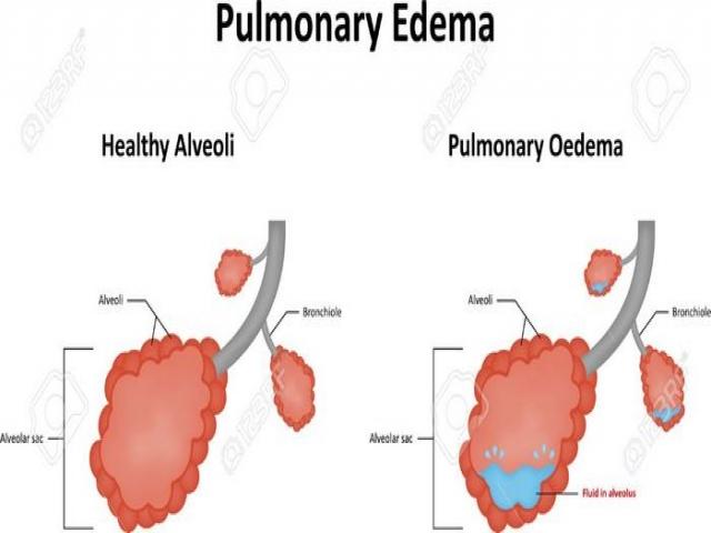 ادم ریه چیست (علل، علائم، پیشگیری و درمان) pulmonary edema