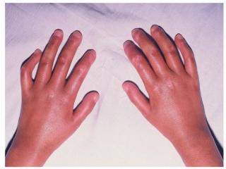 اسکلرودرمی چیست (علل، علائم، پیشگیری و درمان) scleroderma