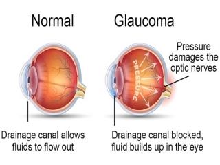 آب سیاه چشم چیست (علل، علائم، پیشگیری و درمان) glaucoma
