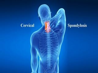 اسپوندیلوز گردن چیست (علل، علائم، پیشگیری و درمان) cervical spondylosis