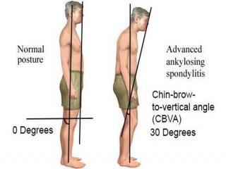اسپوندیلیت آنکیلوزان چیست (علل، علائم، پیشگیری و درمان) spondylitis ankylosing