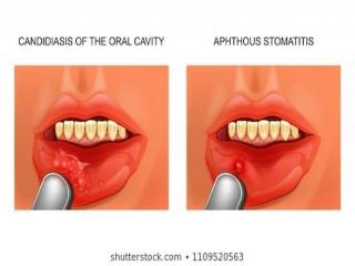 استوماتیت چیست (علل، علائم، پیشگیری و درمان) stomatitis