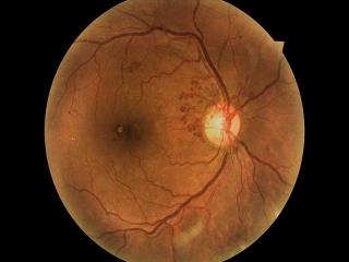 درمان ورم شبکیه چشم توسط فوق تخصص شبکیه