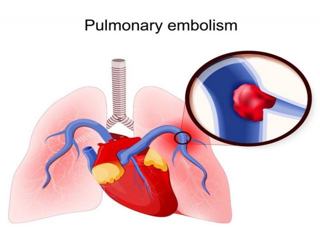 آمبولی ریه چیست (علل، علائم، پیشگیری و درمان) pulmonary embolism