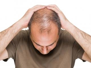 تبلیغ غیرقانونی محصول درمان ریزش موی «ب» در صدا و سیما