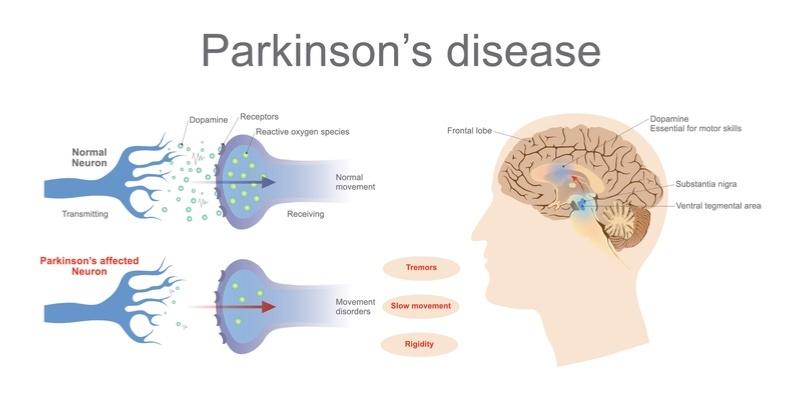 پارکینسون چیست (علل، علائم، پیشگیری و درمان) parkinson's disease