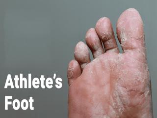 پای ورزشكاران چیست (علل، علائم، پیشگیری و درمان) athlete's foot
