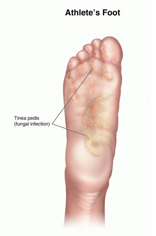 پای ورزشکاران چیست (علل، علائم، پیشگیری و درمان) athlete's foot