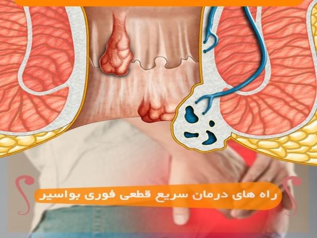 7 راه و روش درمان سریع، قطعی و فوری بواسیر(هموروئید)