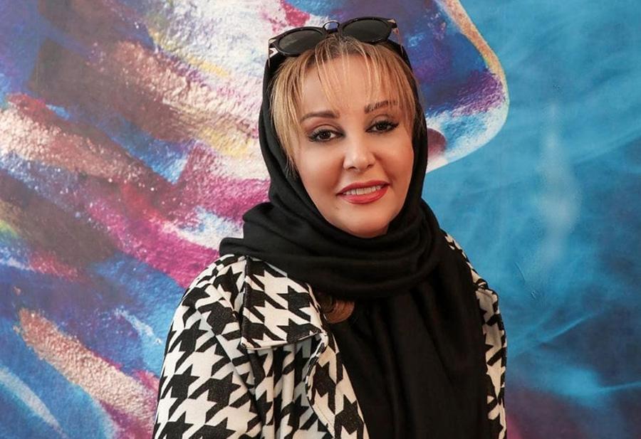 عذرخواهی شیوا خسرومهر بابت جراحی زیبایی صورتش-Shiva Khosromehr apologizes for her facial surgery